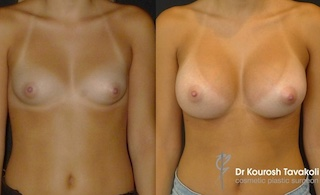 Breast Augmentation Before & After Gallery Thumbnail