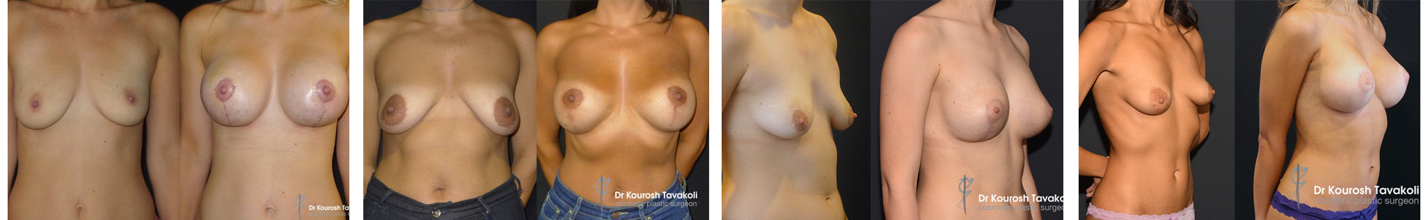 Breast lift mastopexy before and after gallery