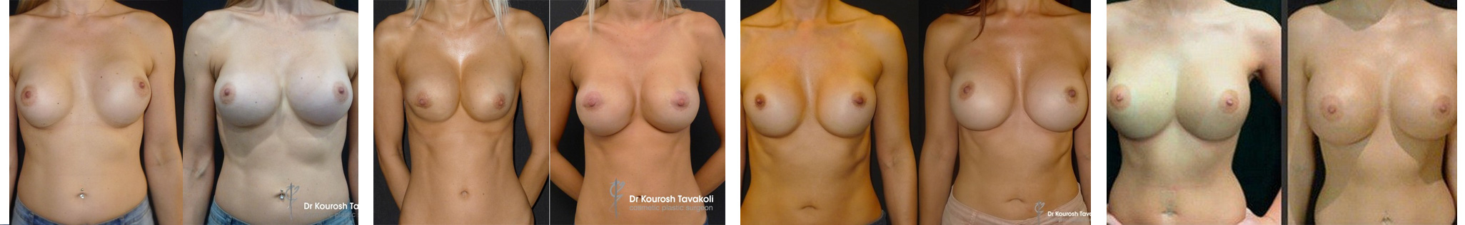 Breast revision surgery before and after gallery