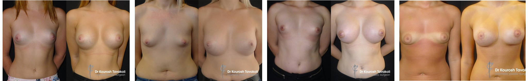 Tuberous breast correction gallery