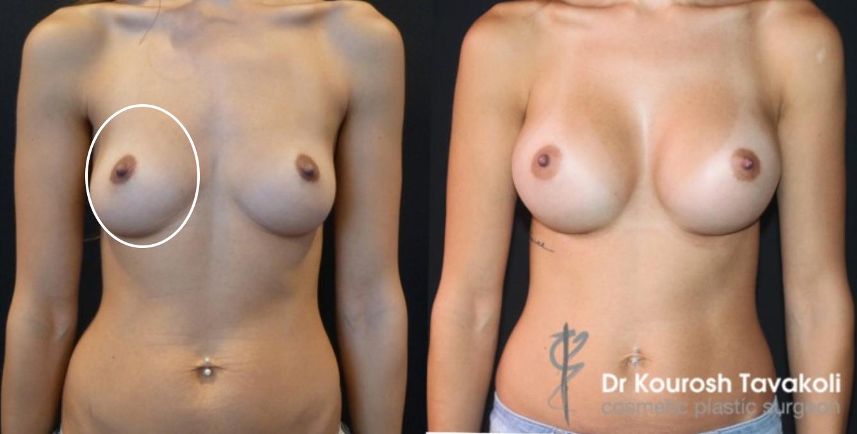 Of breast augementation