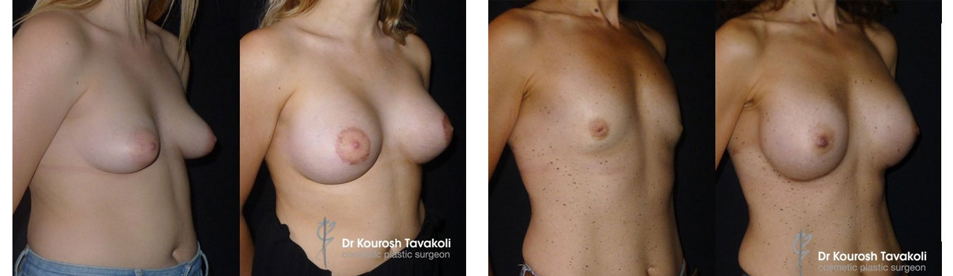 Nipple and areolar correction before and after gallery